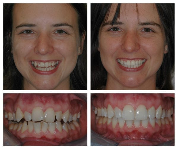 Orthodontic Smile gallery cosmetic dentistry photos images