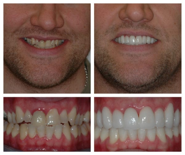 Veneers and cosmetic dentistry photos and images - Mulberry Dental