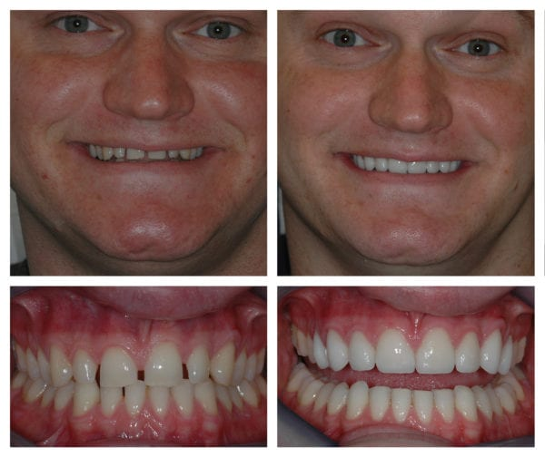 Veneers and cosmetic dentistry photos and images - Mulberry