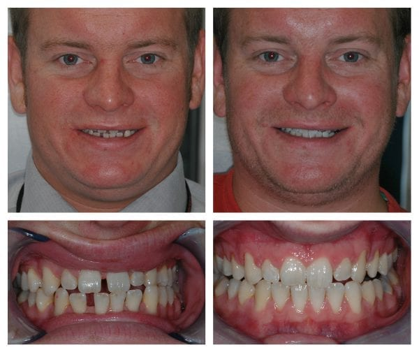 Orthodontist Surrey - Invisalign Invisible Braces Surrey