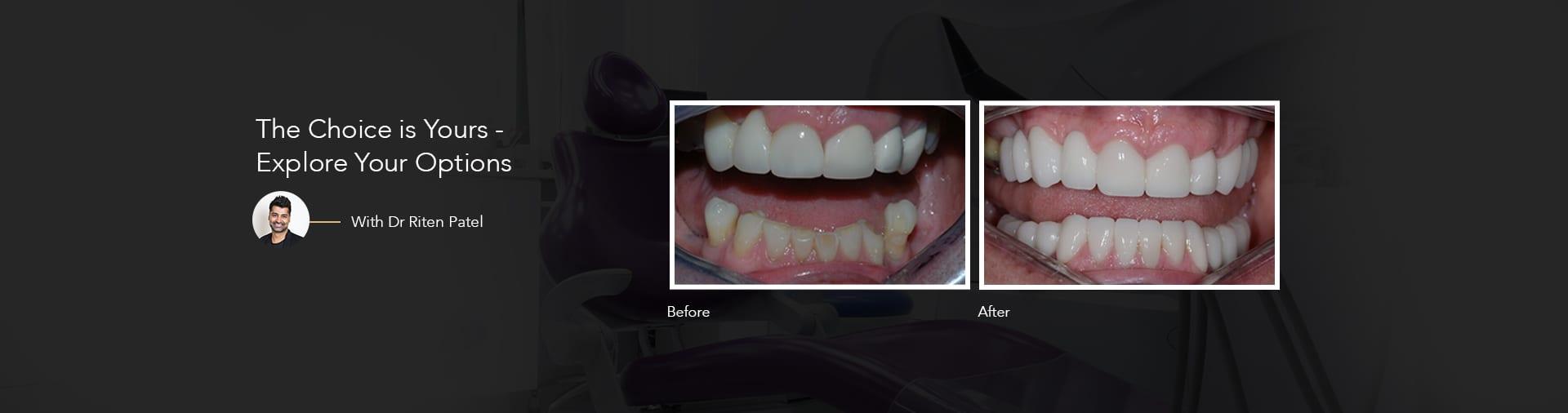 Dental Treatments in Surrey - Implants, Dentures & Endodontic